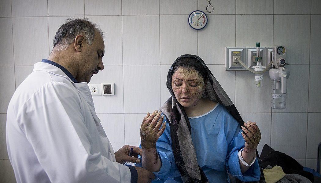 Una donna vittima di un attacco di acido riceve delle cure da un medico.